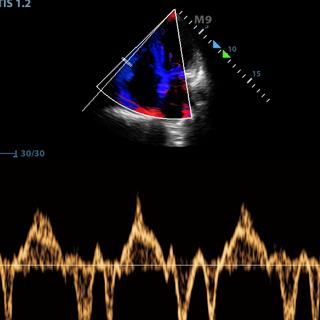 Ultraschall Grundkurs Abdomen